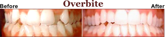Need Help With Your Overbite?