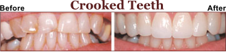 Helped Thousands of Patients fix Their Crooked Teeth.