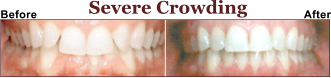 Is Your Teeth to Crowded? Let us Help You.